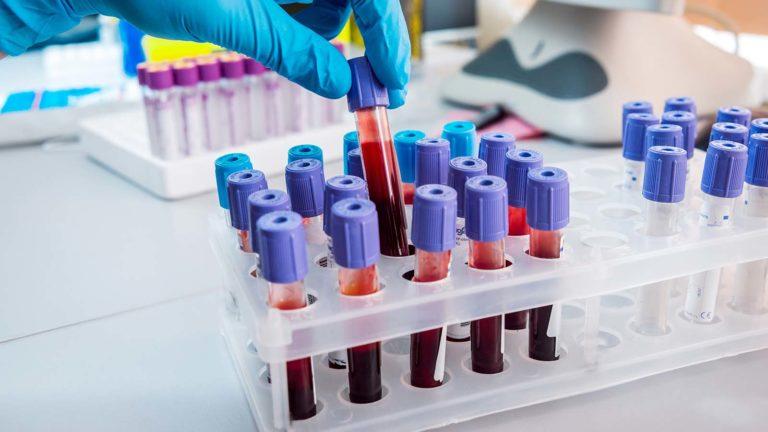 big data stocks - 7 Big Data Stocks Fighting Coronavirus On and Off the Charts