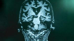 drug stocks alzheimer's disease with MRI